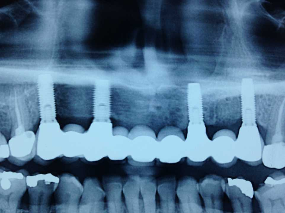 panoramic dentaire délai entre 2