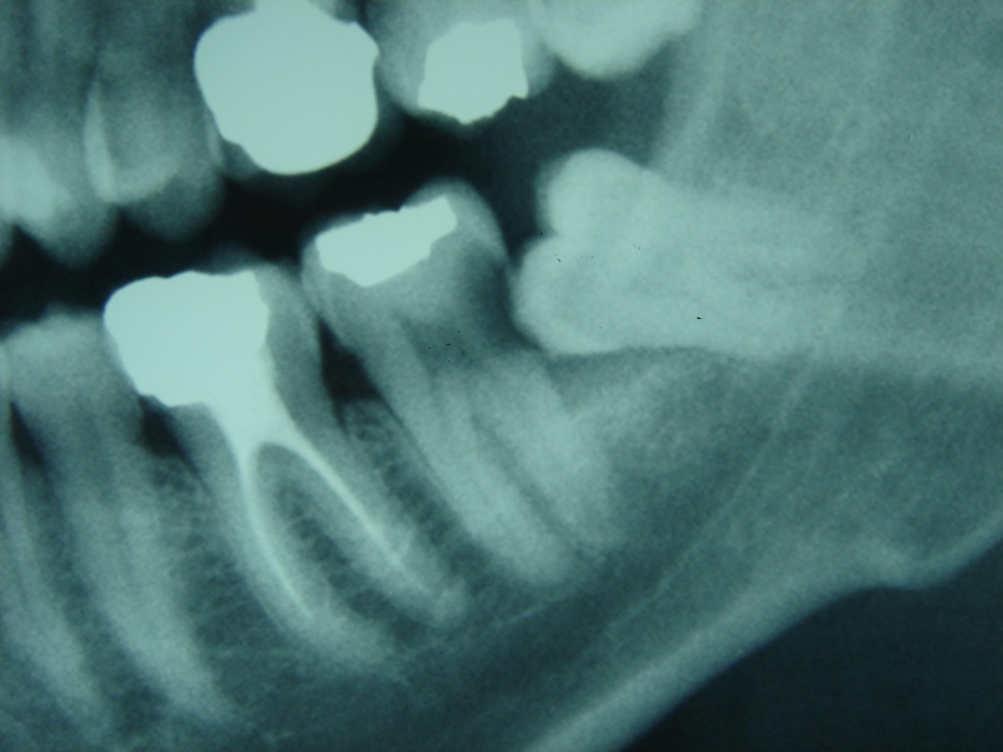 dent enclav e impacted teeth impacted tooth teeth impacted. Black Bedroom Furniture Sets. Home Design Ideas